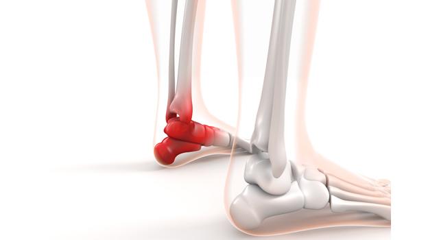 捻挫の正しい処置・テーピング方法|腫れて完治期間を長引かせない